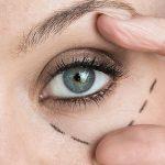 cirurgias-plastica-ocular